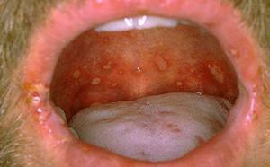 фото стафилококк во рту