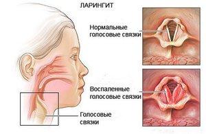 Ларингит в горле