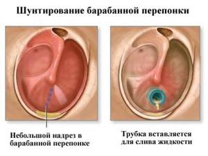 Шунтирование ушей - особенности процедуры