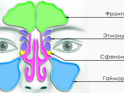 Хронический фронтит — симптомы и лечение