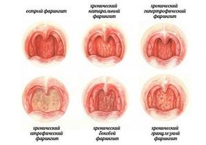 Боль и сухость в горле