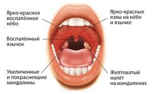 Мононуклеоз у детей лечение фото