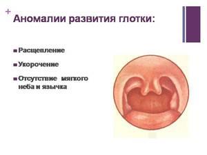 Врожденные аномалии развития глотки