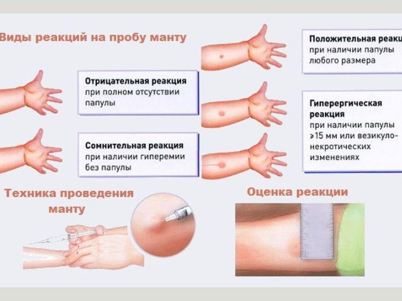 Контагиозный моллюск у детей лечение и фото