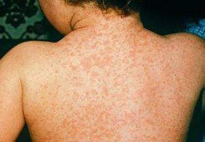 коксаки вирус у взрослых фото симптомы и лечение