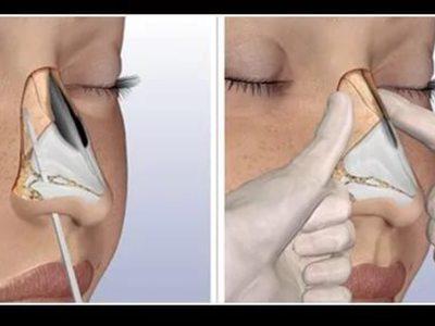 Репозиция костей носа после перелома: подразделение и симптоматика, диагностика и вправление, репозиция