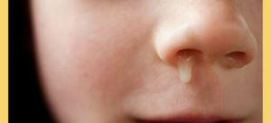 Желтое выделение из носа