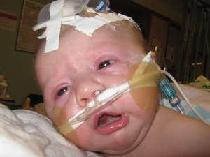 Лечение коклюша у грудных детей
