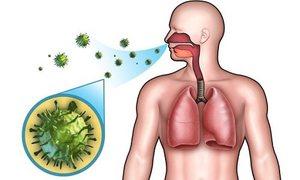 Симптомы стрептококковой пневмонии