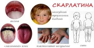 Особенности лечения скарлатины
