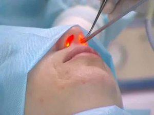 Подготовка к операции по прижиганию