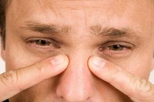 Причины и симптомы гайморита