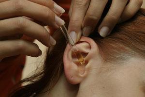 Средства и методы лечения заложенности ушей