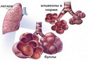 Эмфизема легких буллезная форма