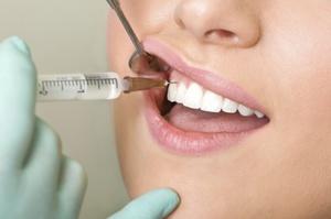 Способы применения препарата Линкомицина в стоматологии