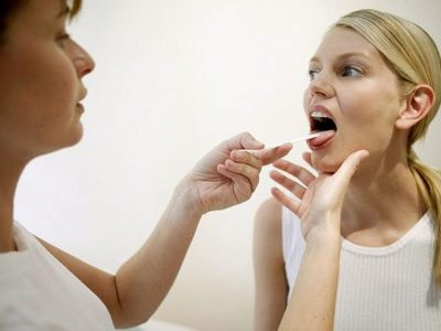 Кандидоз горла и гортани: симптомы и лечение, фото