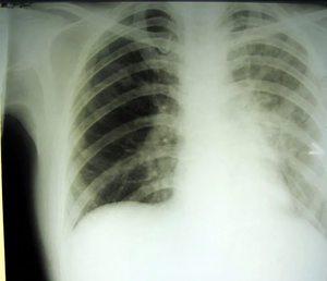 Лечение пневмоцистной пневмонии