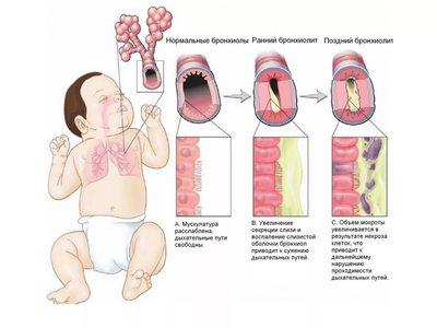 Обструктивный бронхит у детей – лечение