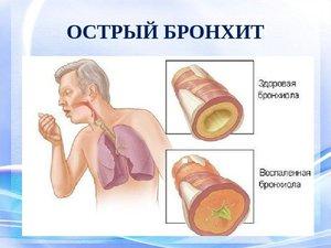 Лечение бронхита горчичниками