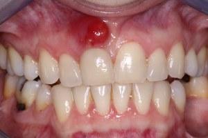 Что такое гнойный абсцесс: признаки абсцедирования, фото и лечение заболевания