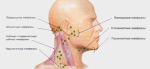 Как лечат воспаленные лимфоузлы