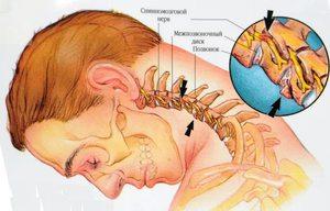 Причины невроза глотки