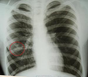 Рентгенография легких - как определить болезни на снимке