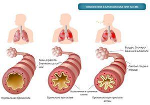 Атопическая бронхиальная астма: что это значит, код мкб, симптомы легкой формы, средней степени тяжести, у детей, забирают ли в армию, лечение, бронхиальный астма мкб код