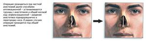 Искривление носа - проблемы и болезни