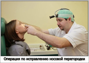 Операция по коррекции носа - как это происходит