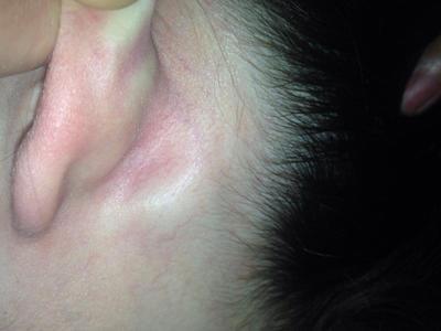 Лимфоузлы на шее: причины воспаления, симптомы и лечение