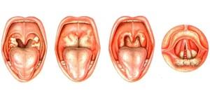 Какие признаки абсцесса в горле