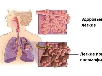 Фиброзные изменения легочной ткани ограниченные