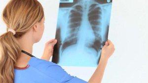 Медикаментозное лечение фиброза легких