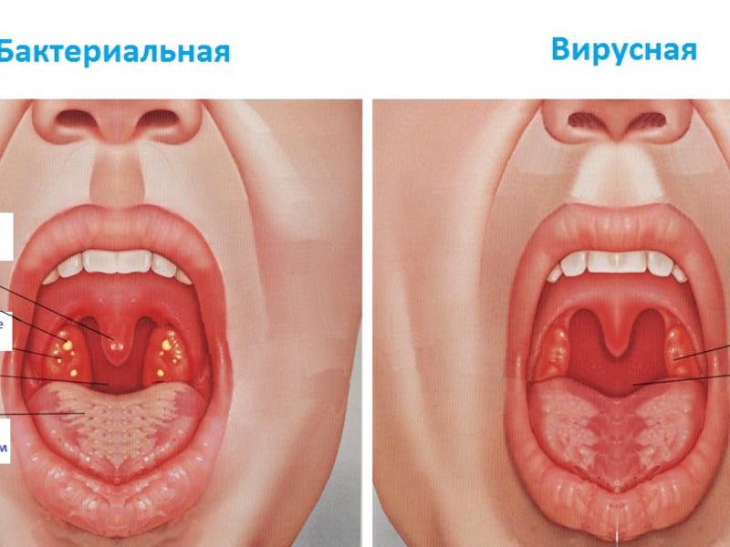 Как лечить болезни горла в домашних условиях