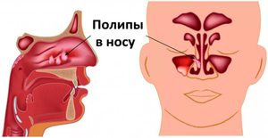 Полипы в носу как их лечить народным средством