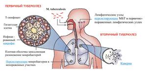 Что такое открытый туберкулез и как его лечить