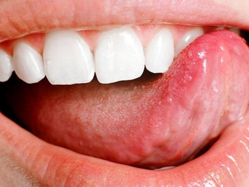Болезнь языка. как лечить домашних условиях