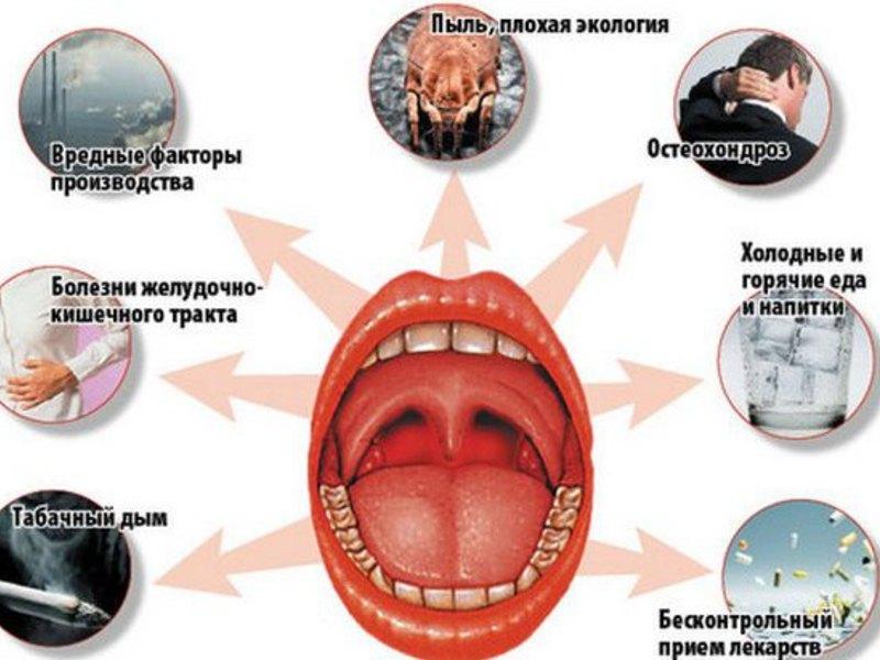 Лечение тонзиллита хронический в домашних условиях